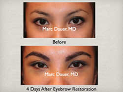 Eyebrow Transplant with real hair using the Neograft hair transplant system
